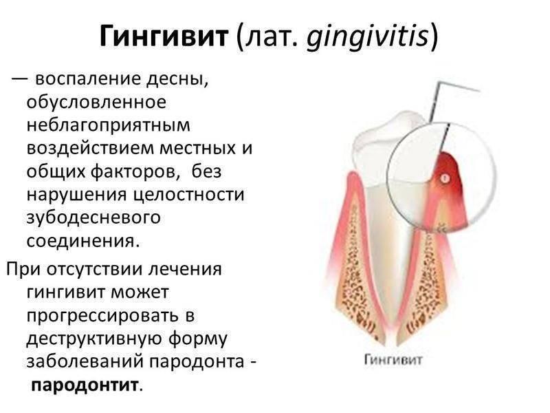 Гингивит у детей очень опасен. о лечении