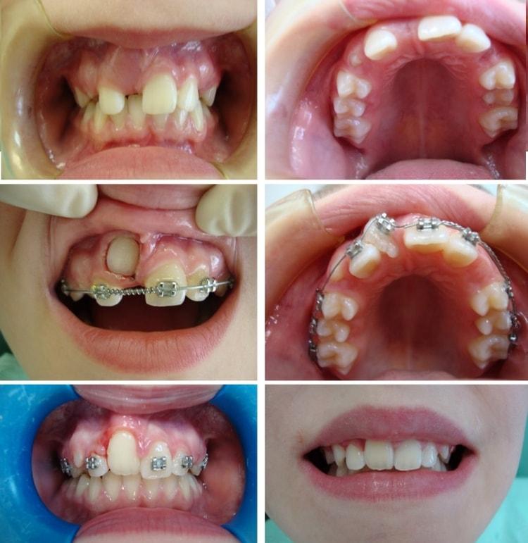 Со скольки лет и до какого возраста можно ставить брекеты для выравнивания зубов