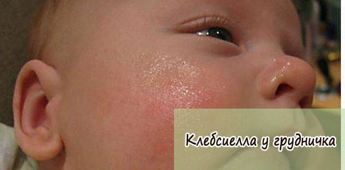 Глисты у новорожденных: симптомы, лечение и профилактика