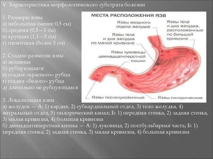 Язвенная болезнь двенадцатиперстной кишки: симптомы и лечение