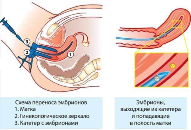 Запор после эко: лечение после переноса эмбрионов