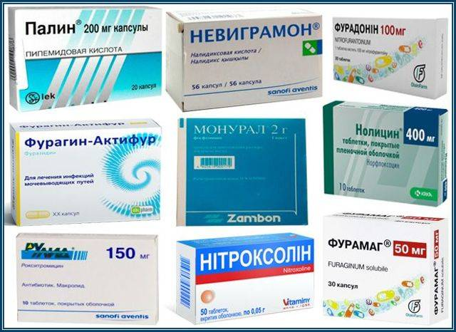 Цистит у детей: причины, симптомы, лечение, антибиотики, можно ли лечить в домашних условиях