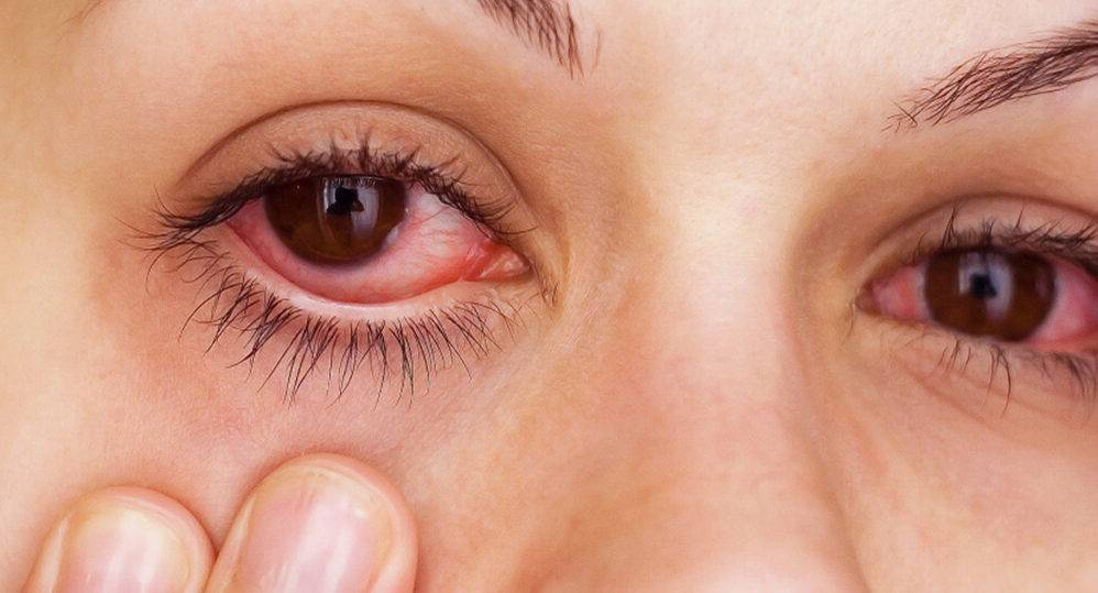 Воспалился глаз у ребенка - как и чем лечить