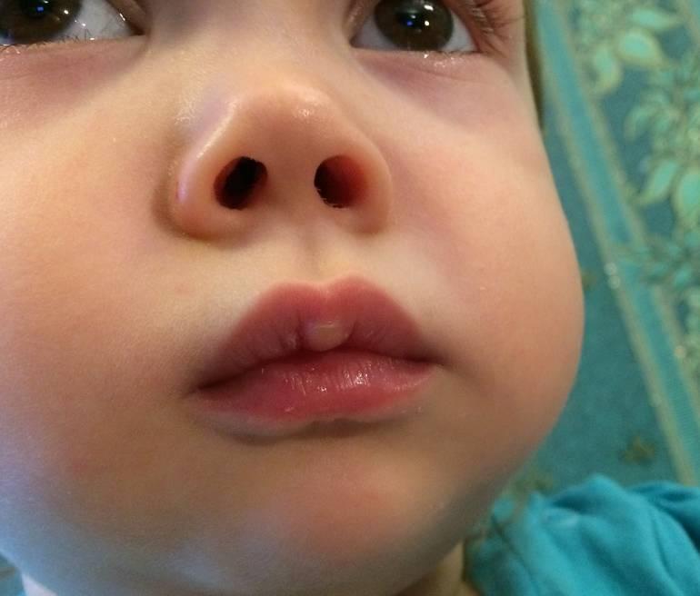 Мозоль на губе у новорожденного: верхней или нижней, причины возникновения у младенцев и возможные последствия для ребенка, а также фото грудничков с данным образованием