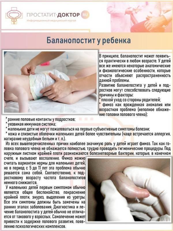 Синехии у мужчин лечение в домашних условиях - врач сидоров