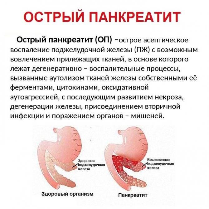 Реактивный панкреатит у детей: симптомы и лечение, диета