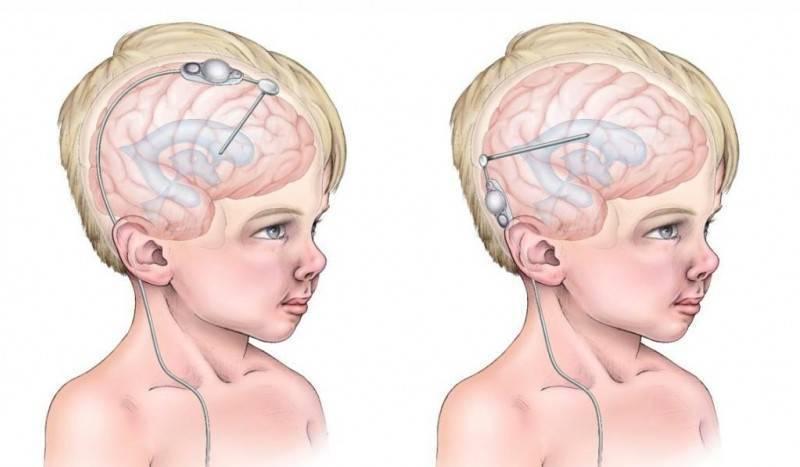 Псевдо киста в мозгах у новорожденного