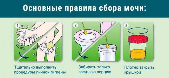 Как правильно сдавать мочу при беременности с тампоном - onji.ru