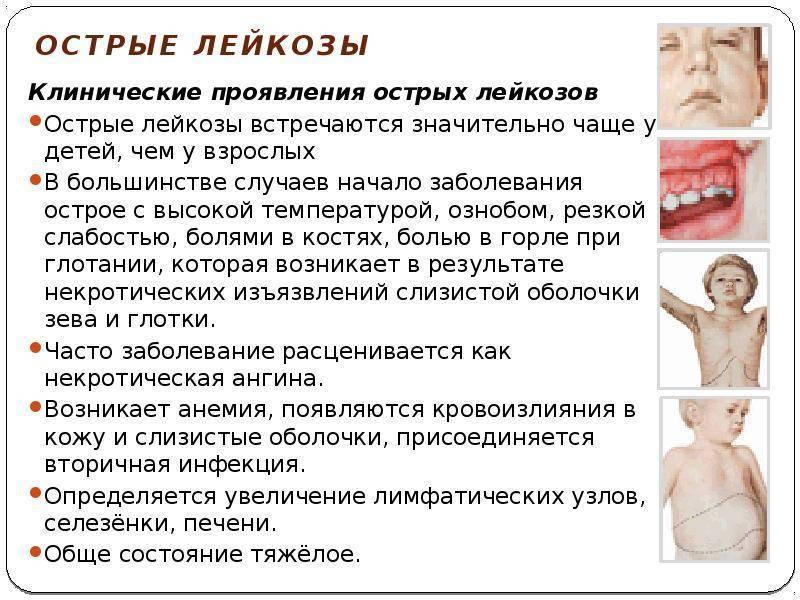 Острый лимфобластный лейкоз - выживаемость, клинка, прогноз