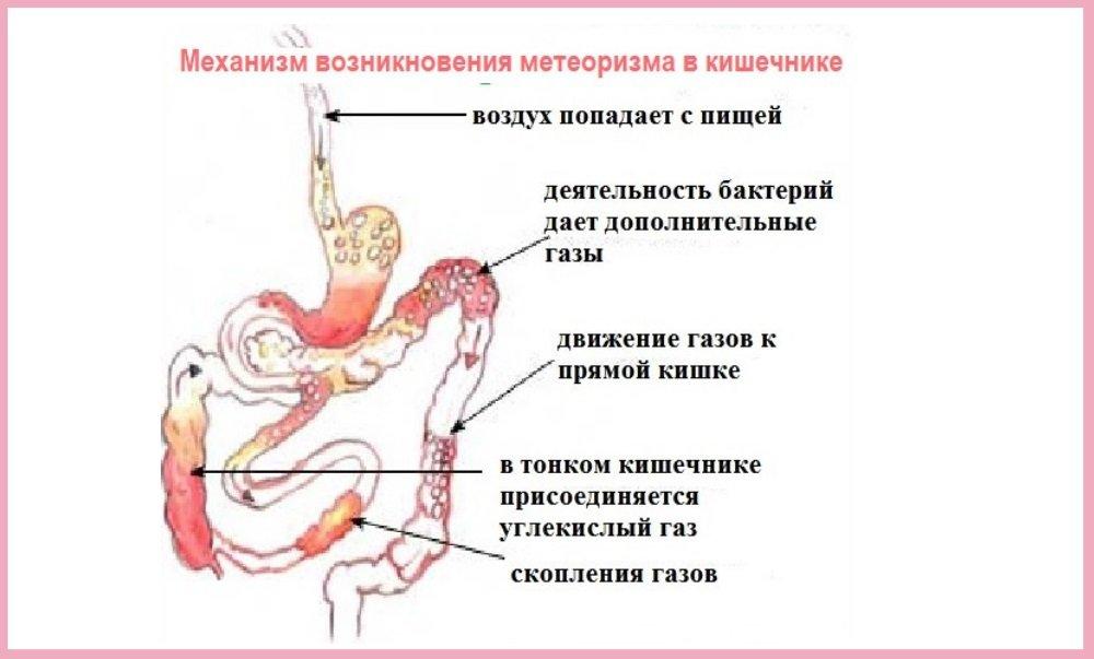 Вздутие живота при беременности: причины, чем опасно и как вывести газы