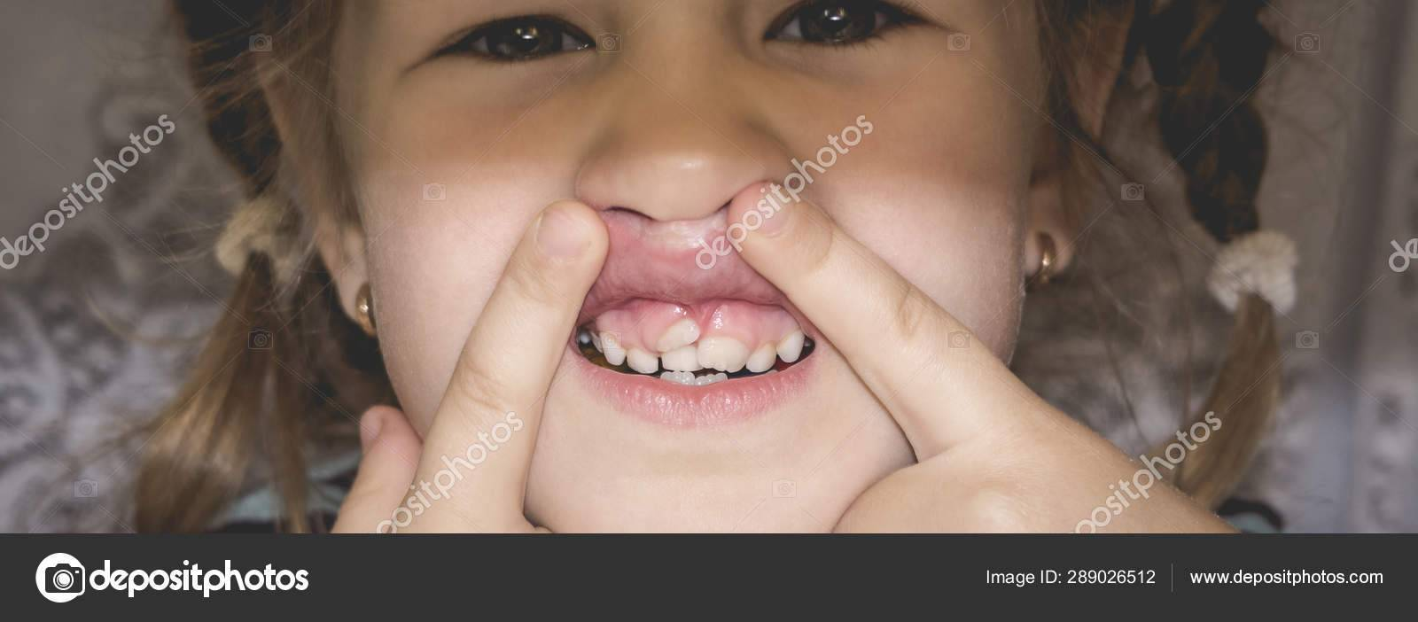 Почему зубы у взрослых становятся кривыми - восемь основных причин