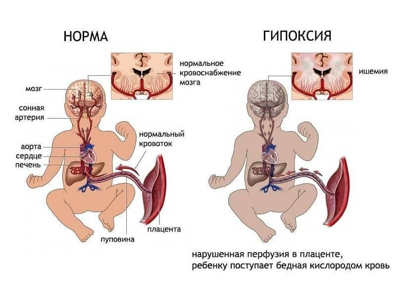 Ишемия головного мозга у новорожденного — последствия и лечение поражения у детей