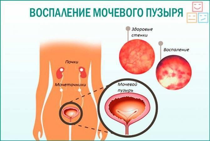 Симптомы цистита у девочек разного возраста, чем лечить цистит   prof-medstail.ru