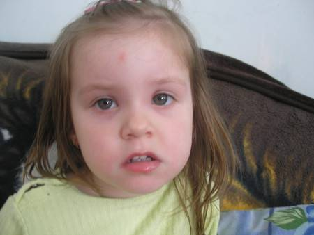 Опухла переносица у взрослого и ребенка: причины и лечение отека