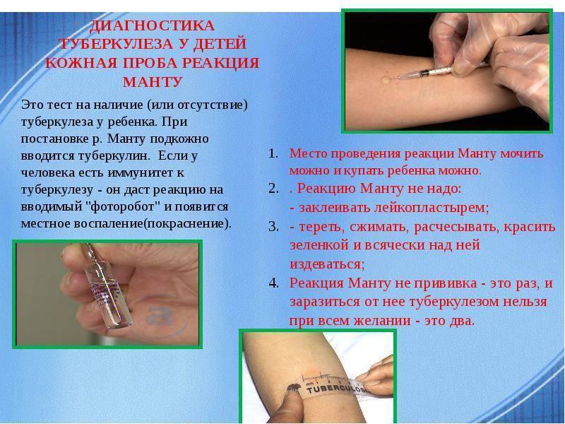Проба на реакцию манту: можно ли ставить прививку малышу с простудой и соплями