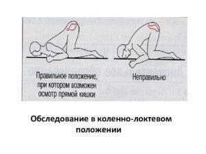 Коленно локтевая позиция при беременности польза newmed.su - все для мамы и малыша