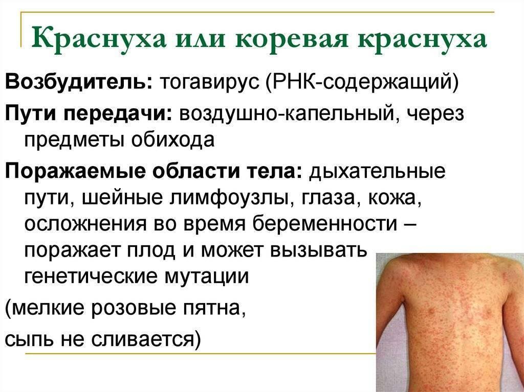 Краснуха у взрослых симптомы и лечение профилактика фото