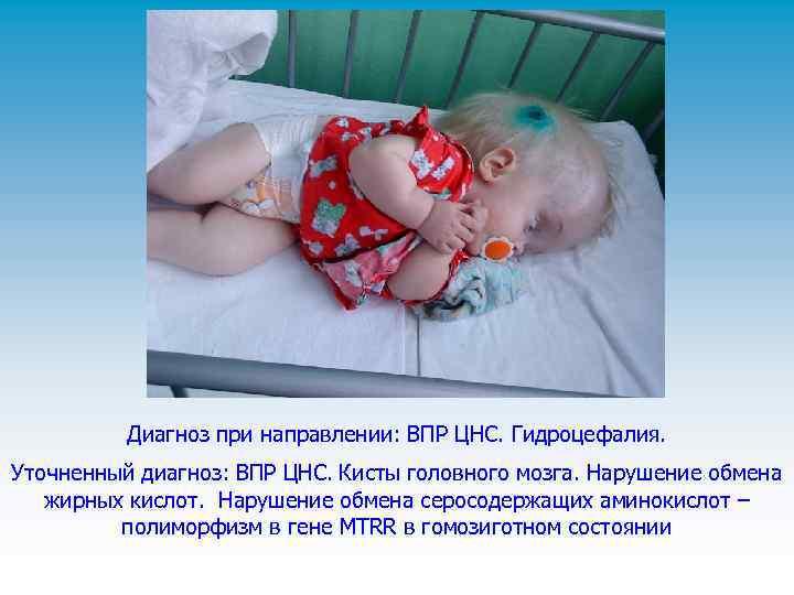 Врожденные пороки развития плода. здоровье и развитие ребенка до рождения