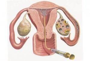 Стимуляция яичников для планирования беременности народными средствами | kazandoctor.ru
