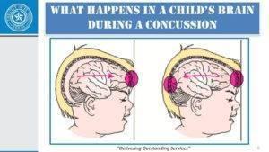 Что делать, если ребенок ударился головой – первая помощь при ушибе головы у ребенка