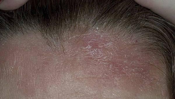 Hothair.ru - как лечить себорейный дерматит волосистой части головы у взрослых и детей?