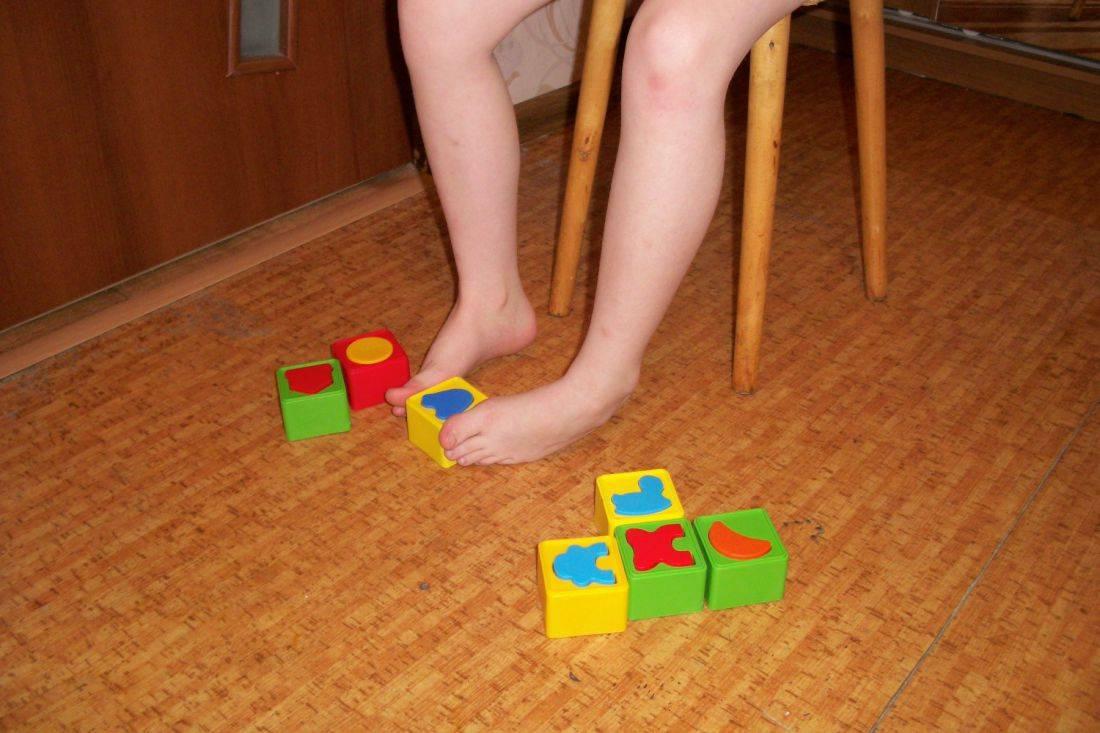 Эффективные упражнения при вальгусной деформации стопы у детей: лфк, гимнастика, видео как делать