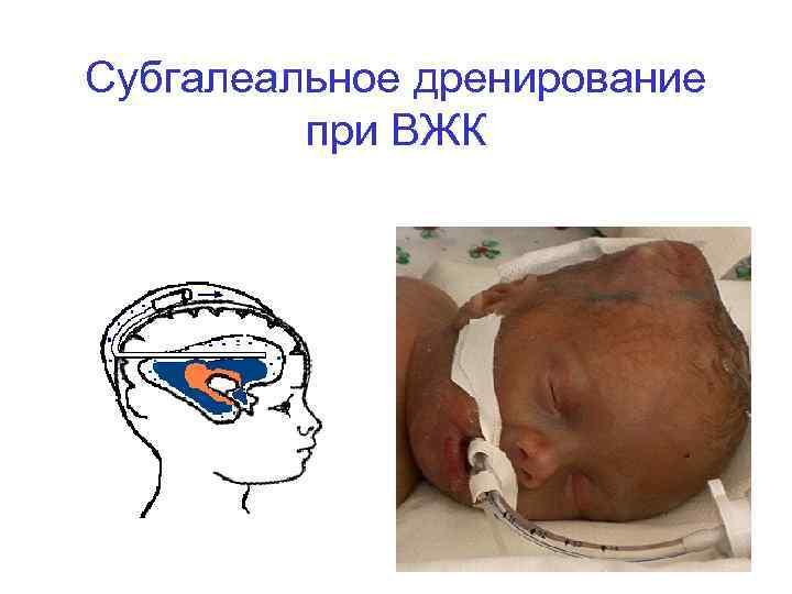 Причины появления кровоизлияния в мозг у новорождённых