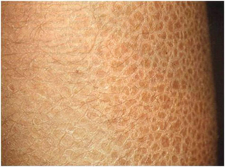 Сухая кожа на ногах руках у ребенка причины и лечение