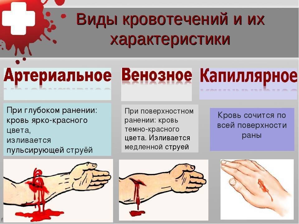 В чем причина сильного кровотечения при месячных и как его остановить