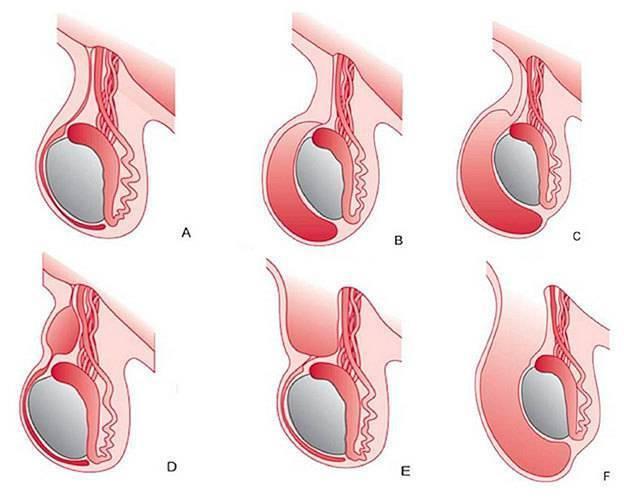 Перекрут гидатиды яичка у мужчин: причины, симптомы, осложнения