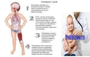 Что такое полиомиелит, формы полиомиелита и признаки