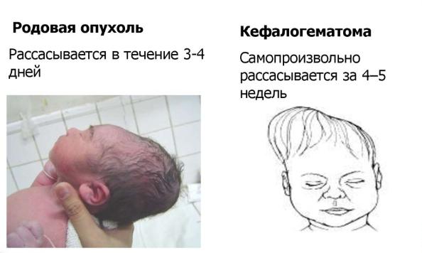Кефалогематома у новорожденных на голове: последствия, лечение