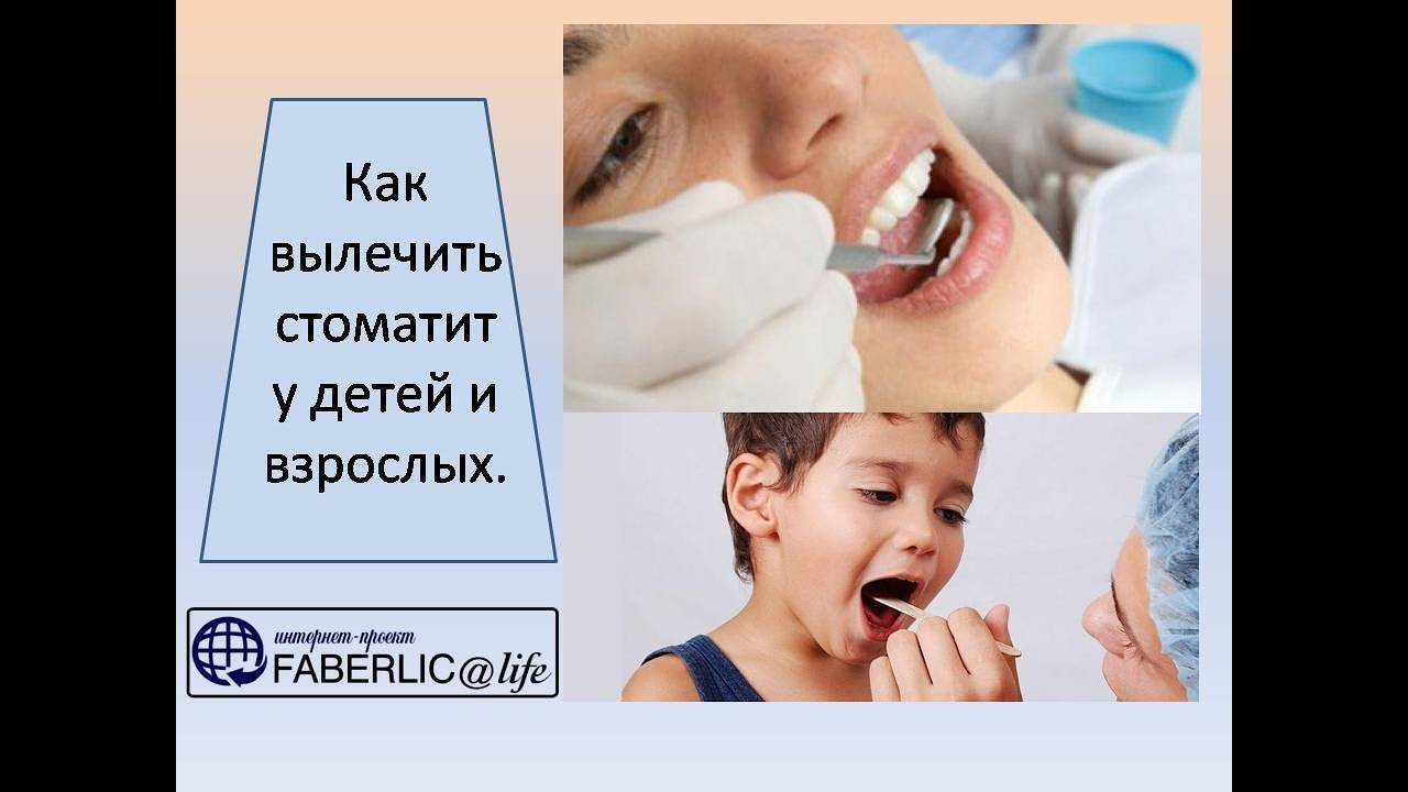 У ребенка во рту белые язвочки