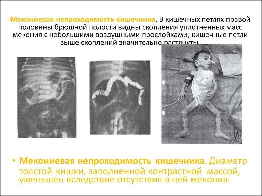Стеноз кишечника у новорожденных. врожденная кишечная непроходимость у новорожденных