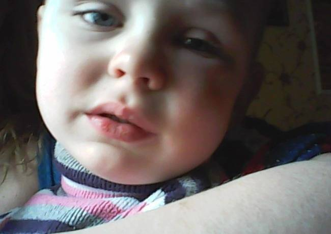 У ребенка опухла щека с одной стороны. у ребенка опухла щека с одной стороны: почему и что делать