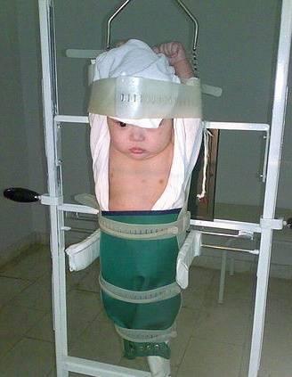 Как часто можно делать рентген ребенку и как это зависит от возраста