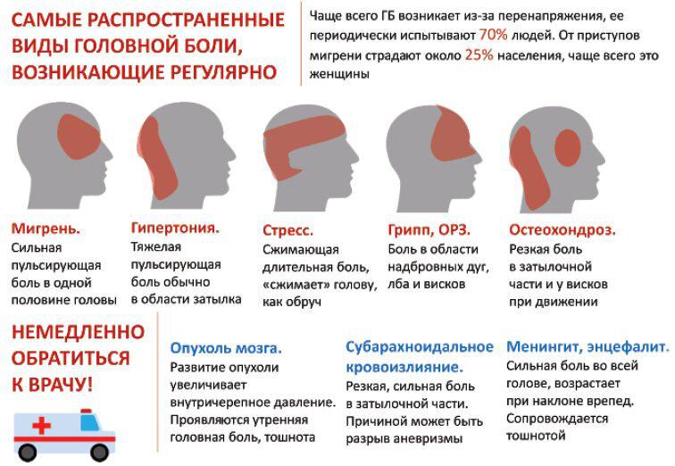 "Рубрика ""мигрень"""