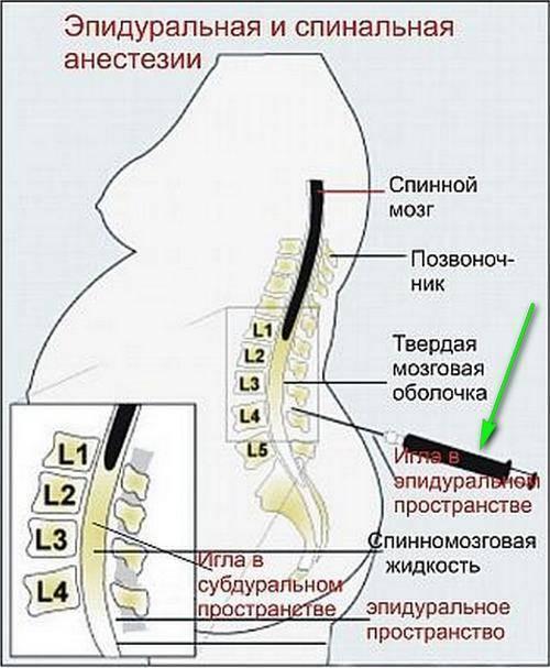 Спинальная и эпидуральная анестезия. важные факты