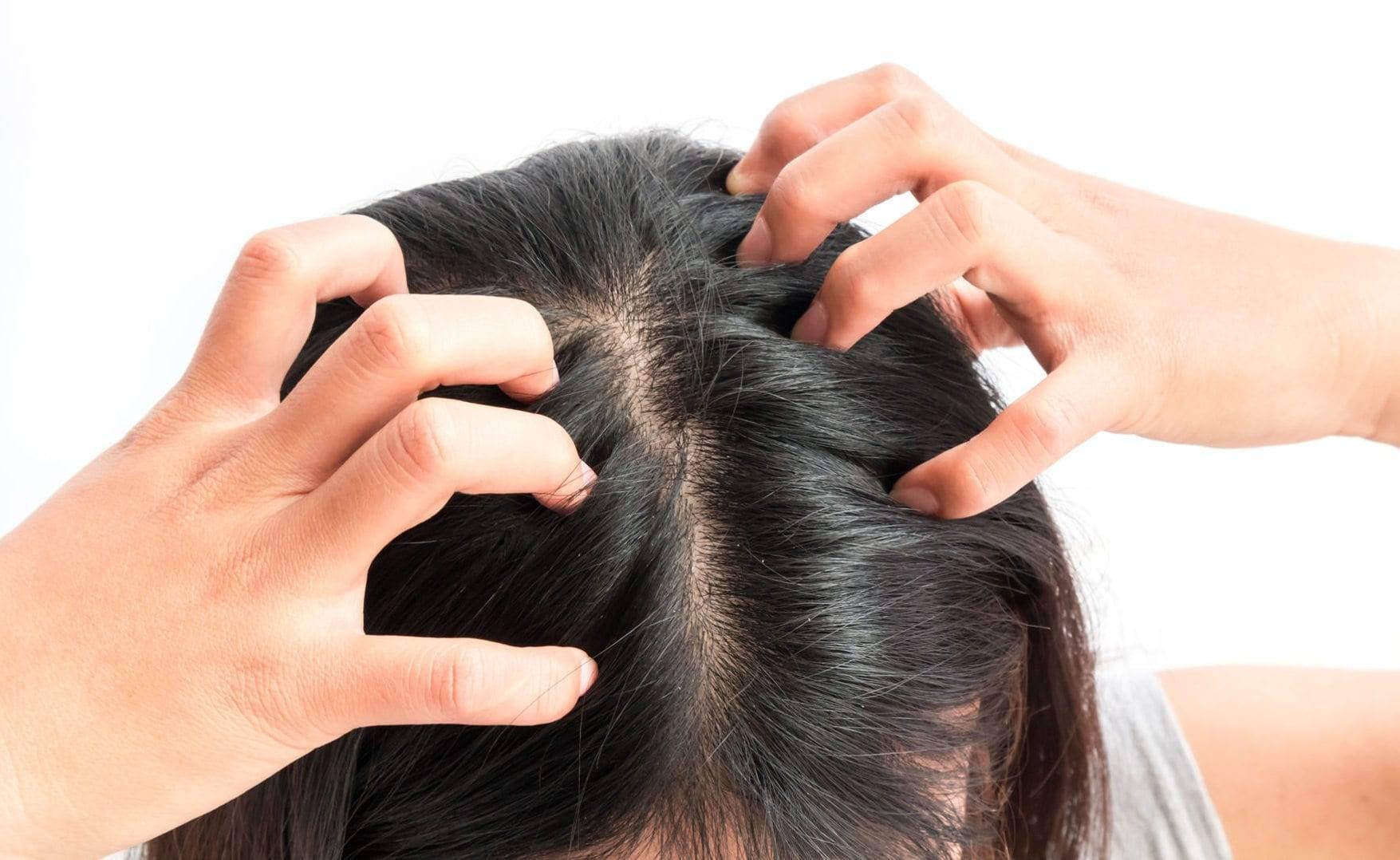 Сухая кожа головы: симптомы, причины, лечение