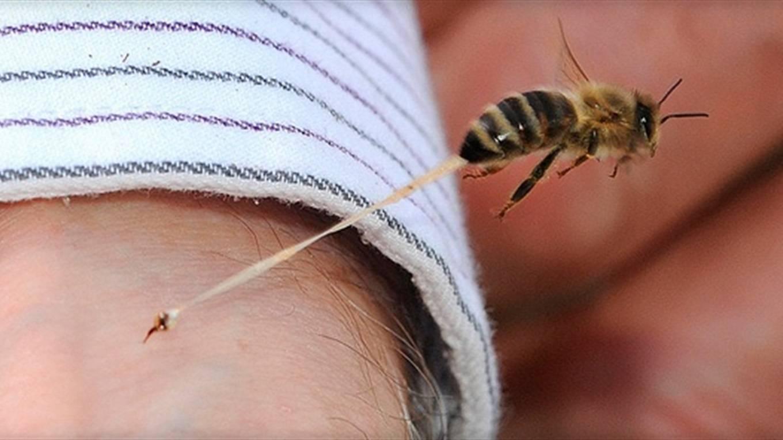 Укусила пчела: что делать и как помочь пострадавшему
