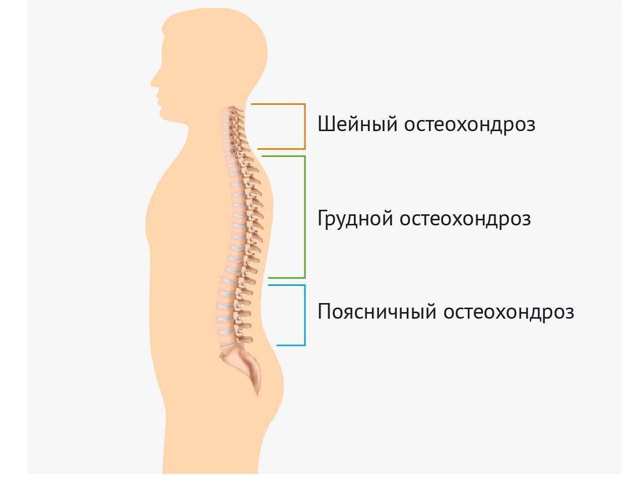 Особенности остеохондроза при беременности –  проявления и лечение