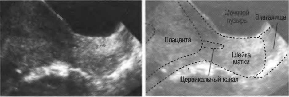 Гипертонус матки. гипертонус матки у беременной - причины, диагностика, лечение