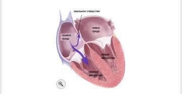 Что такое открытое овальное окно в сердце у новорожденных, когда оно должно закрыться?