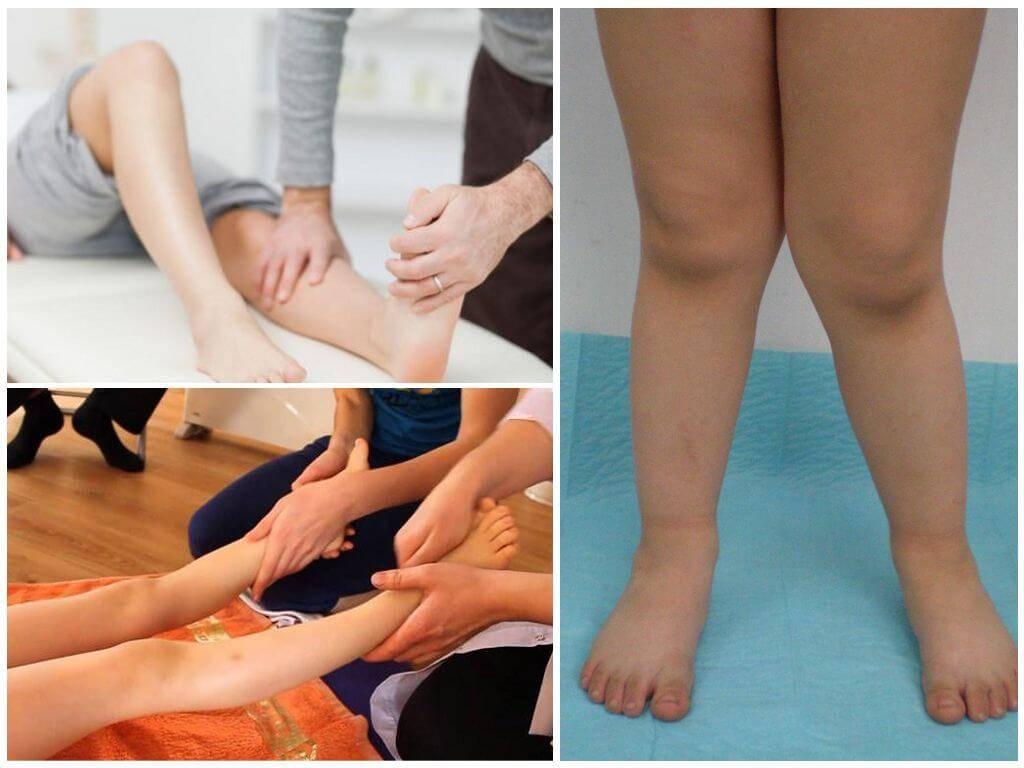 Лечение косолапости у детей. признаки косолапости у детей с фото, методы лечения с помощью упражнений, массажа и обуви