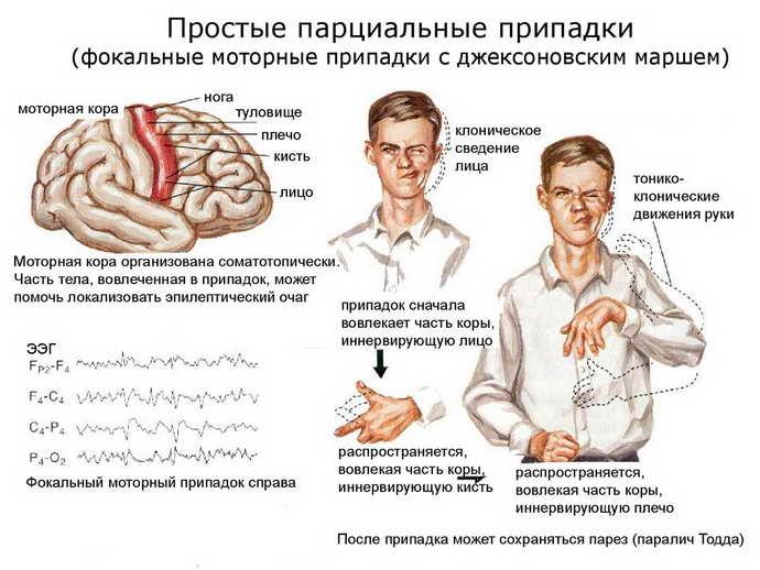 """Рубрика """"виды и формы эпилепсии"""""""