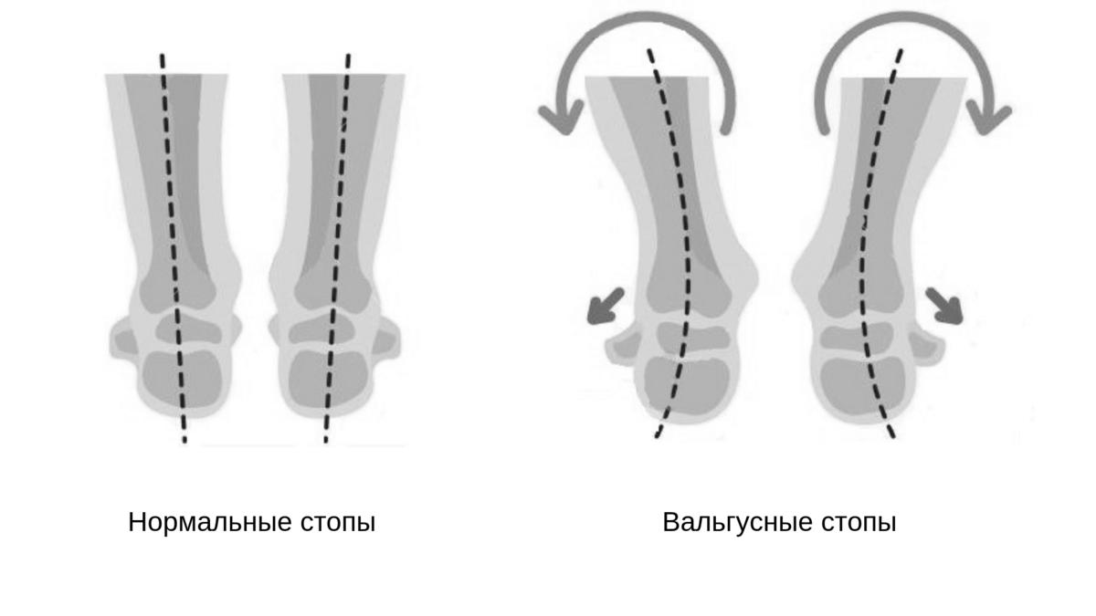 Вальгусная деформация стопы у детей
