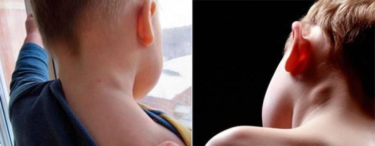Лимфоузлы на затылке увеличены и болят: причины и симптомы воспаления