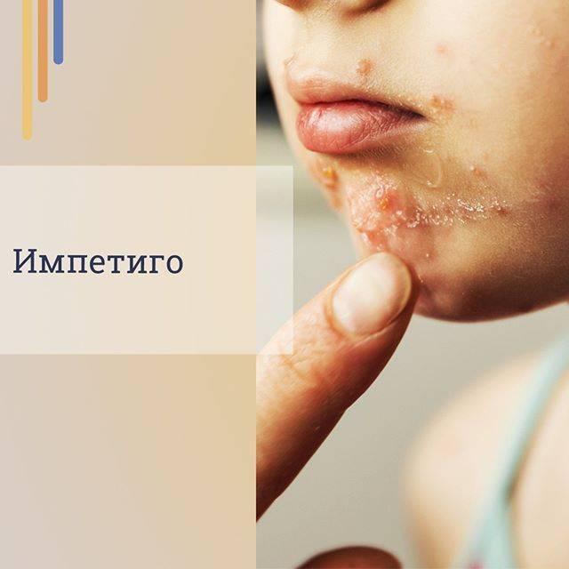 Импетиго: фото, симптомы и лечение у детей и взрослых