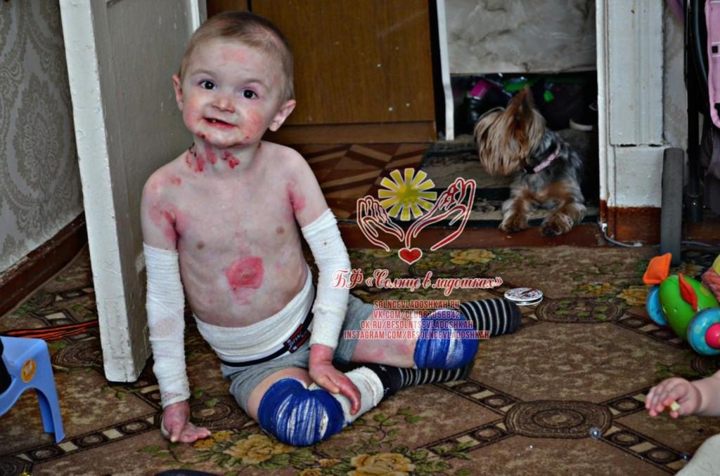 В россии начинают лечить буллезный эпидермолиз — бабочки — русфонд