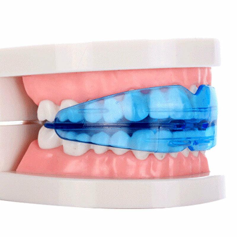 Пластинки для зубов для детей, фото: сколько стоит, как и когда ставят?